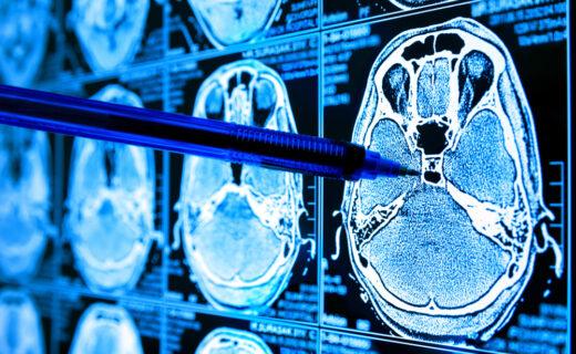 medical_imaging